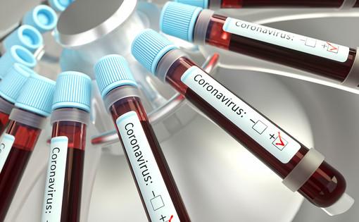 coronavirus - foto di repertorio