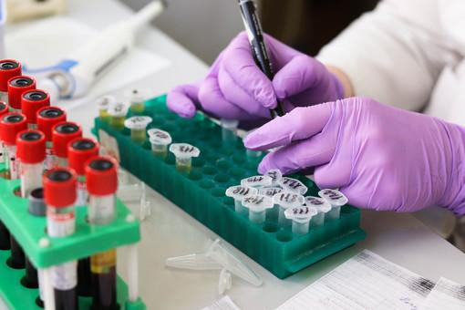 Coronavirus, 10 contagi e 83 guariti nelle ultime 24 ore in Piemonte